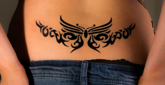 Laser Tattoo Removal skin deep naples